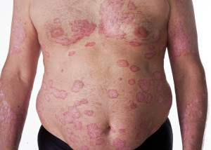 plaque psoriasis | natural psoriasis treatment, Skeleton